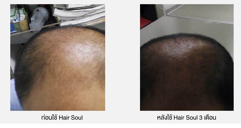 รีวิว ยาปลูกผม Hair Soul, ผลการใช้ยาปลูกผม Hair Soul